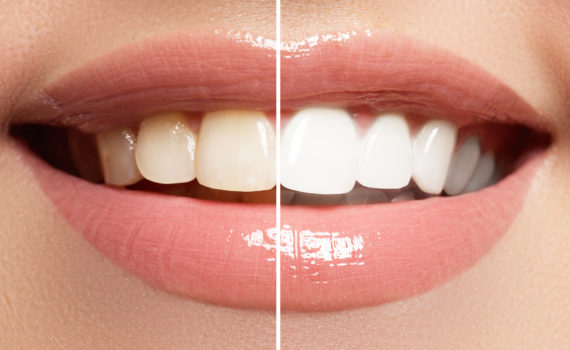 tooth whitening dentist silver spring maryland