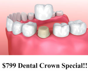 dental crown special silver spring md dentist