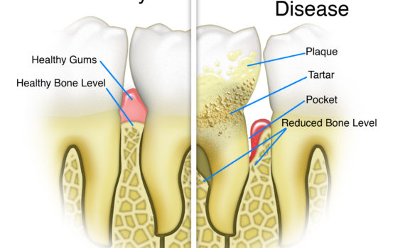 gum disease dentist silver spring maryland