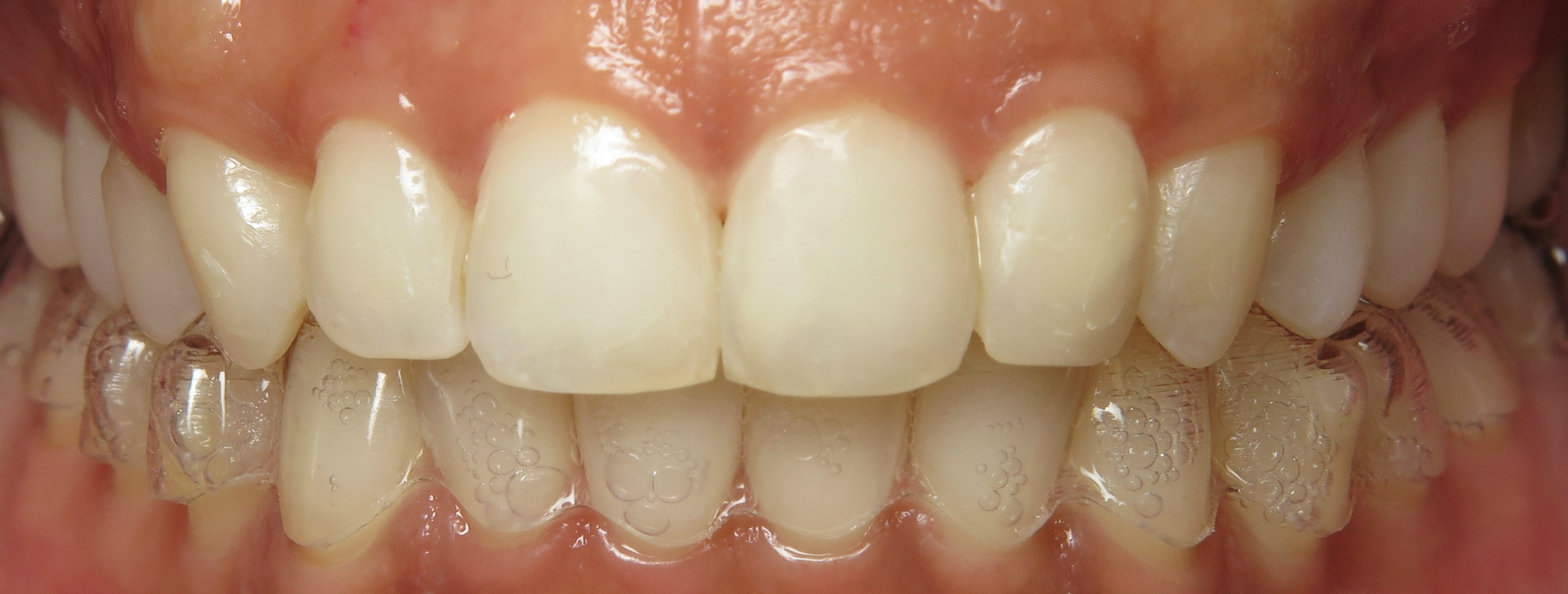 invisalign dentist clear braces silver spring md