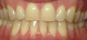 tooth whitening silver spring maryland