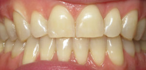 tooth bleaching dentist silver spring maryland