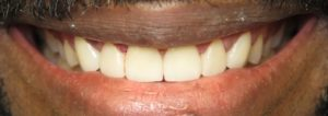 veneers dentist silver spring md after