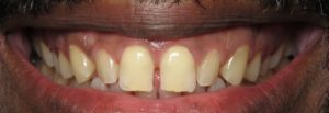 veneers dentist silver spring md before