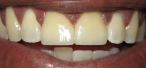 crown veneer dentist silver spring