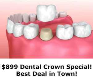 dental crown special silver spring