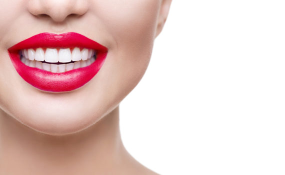 dental veneers hollywood smile silver spring md