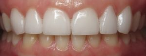 porcelain veneers after dentist silver spring dq