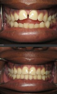 open bit invisalign silver spring maryland