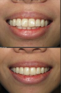 invisalign dentist clear aligners